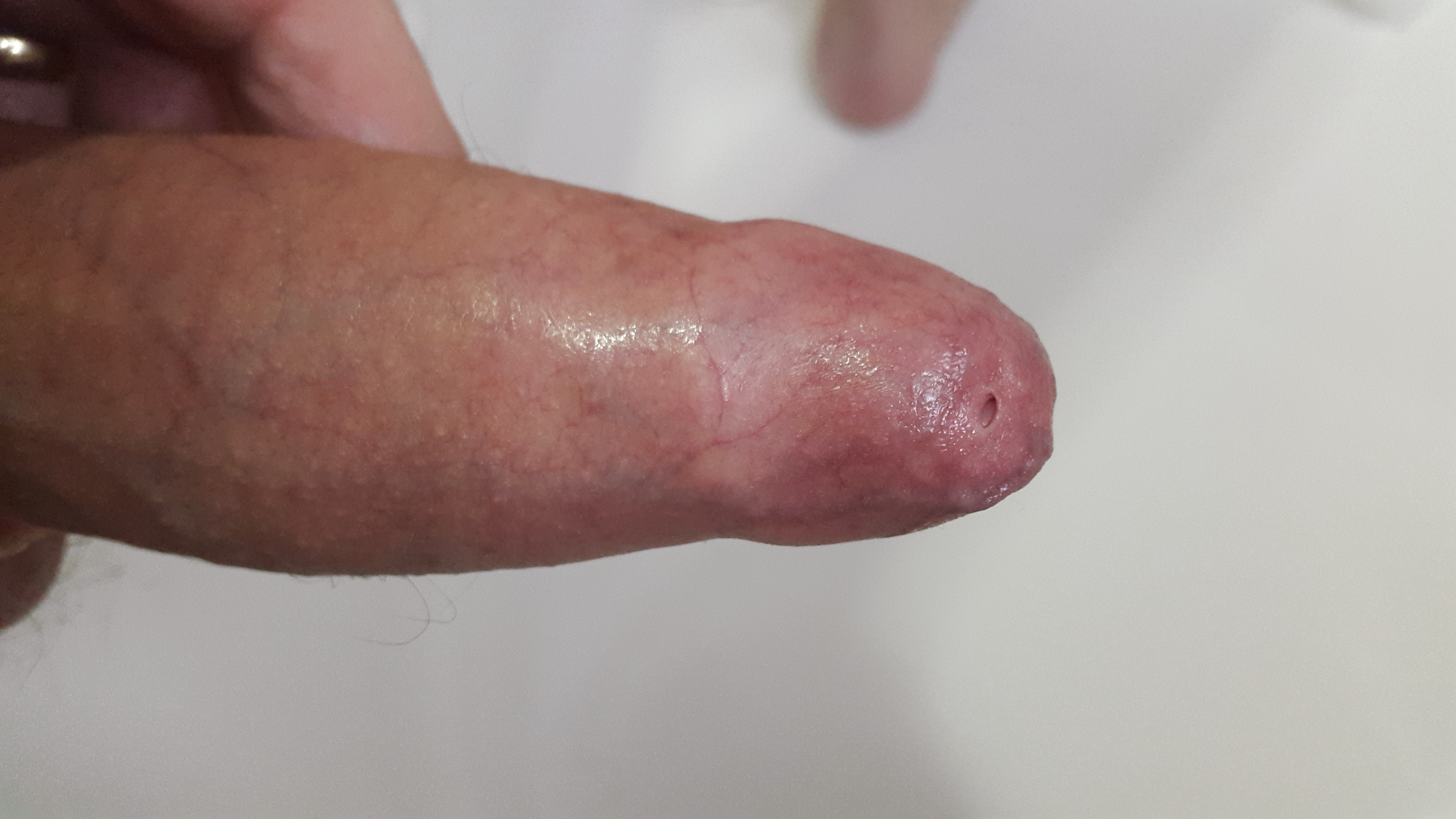 erect penis with severe pinhole phimosis