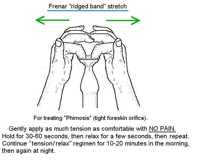 Phimosis stretching diagram