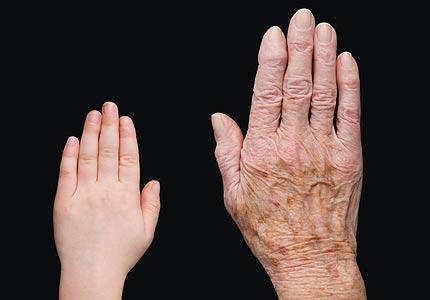 wrinkly skin