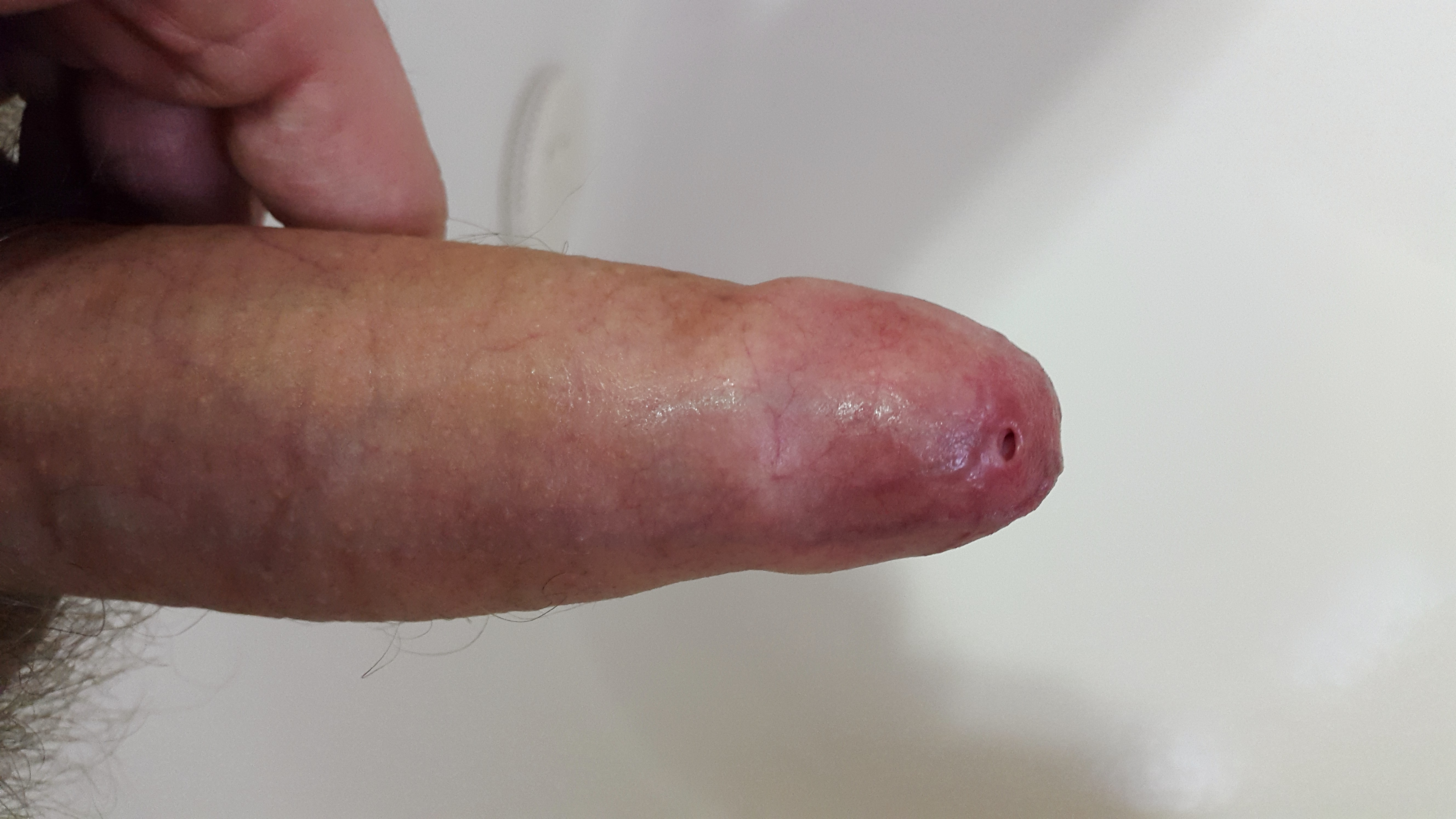 Erect penis with severe phimosis (tight foreskin)