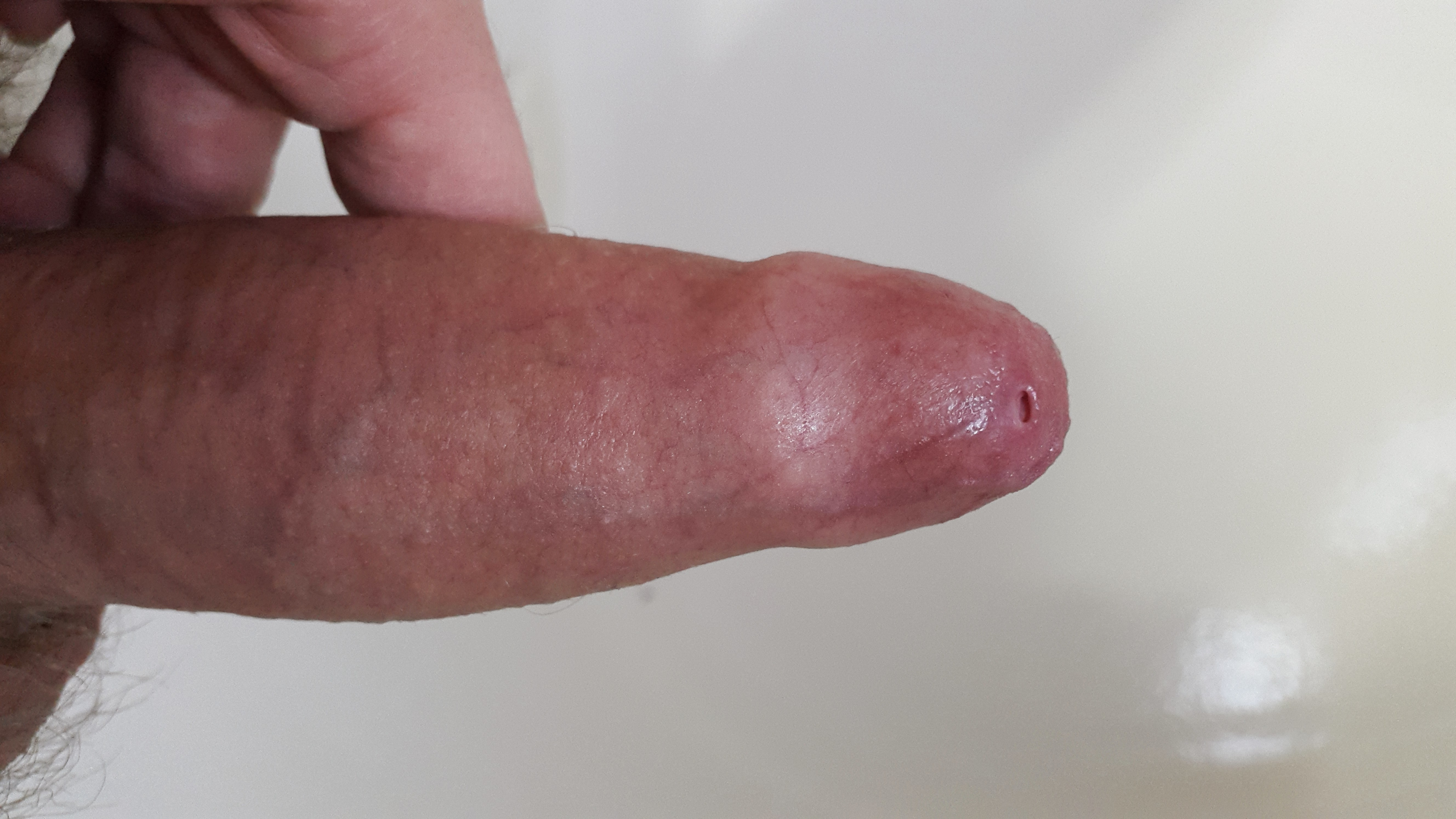 Erect penis with pinhole phimosis