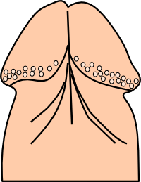 Diagram of pearly penile papules