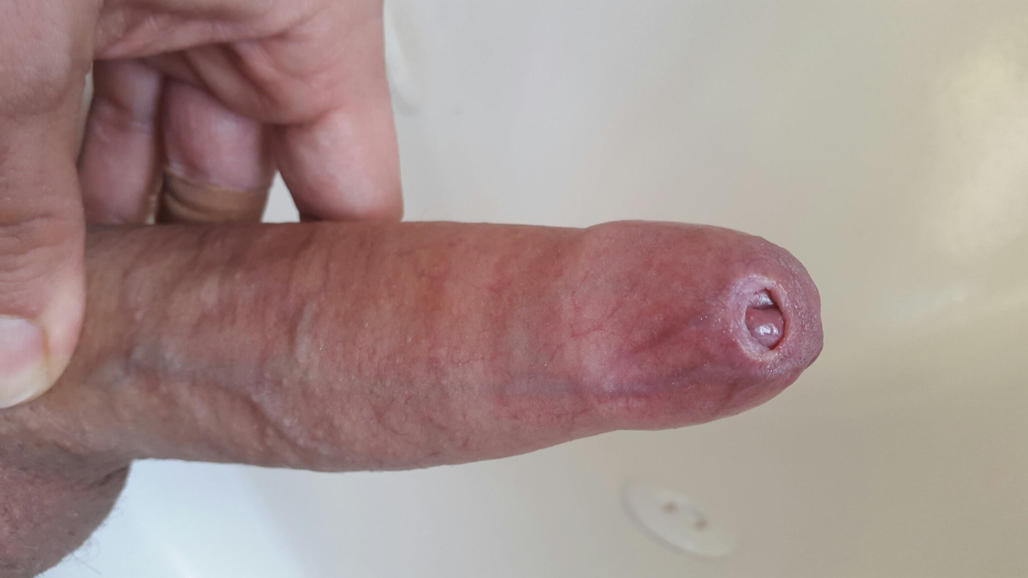 Penis with tight foreskin