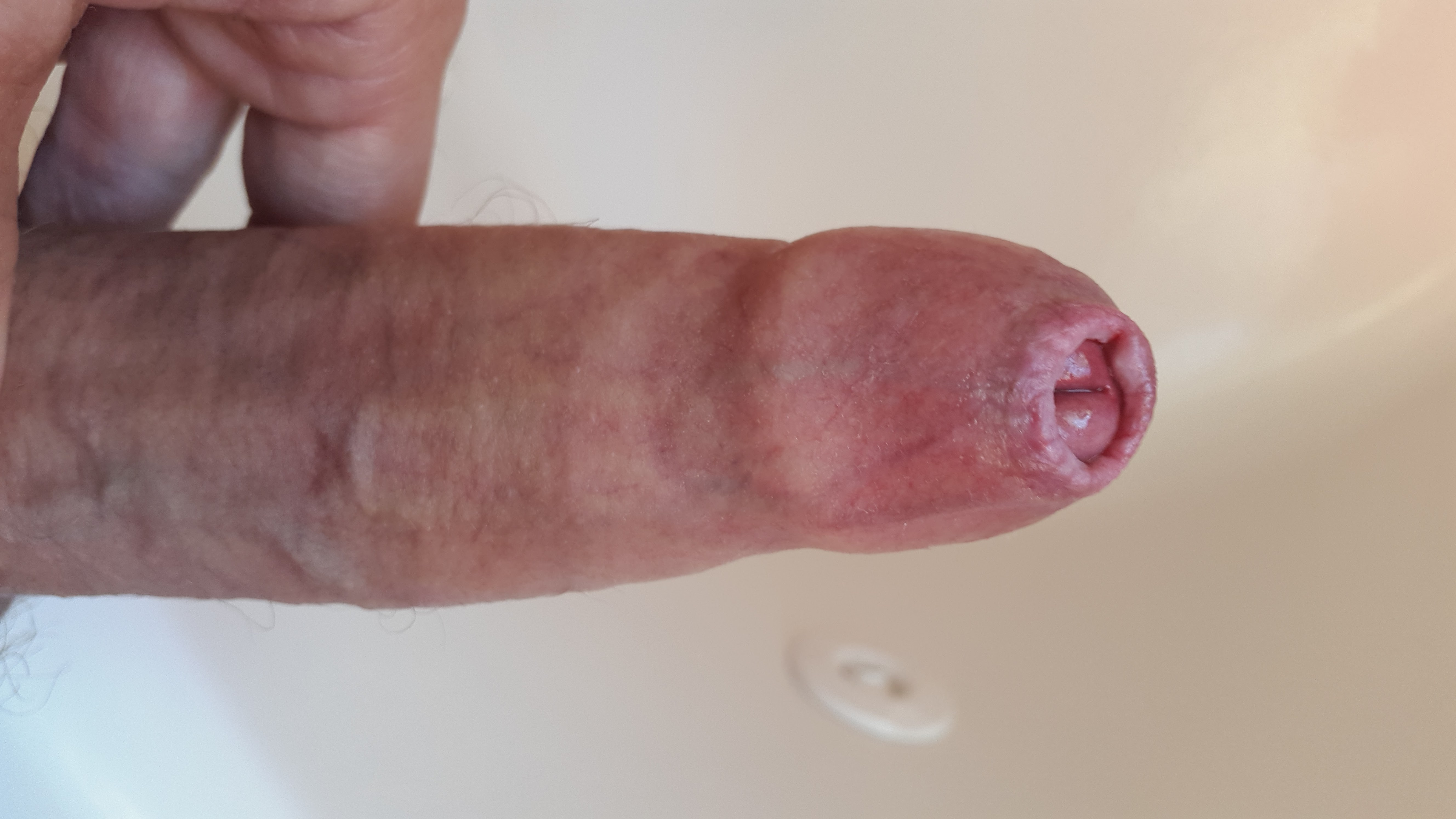 Penis after stretching phimosis