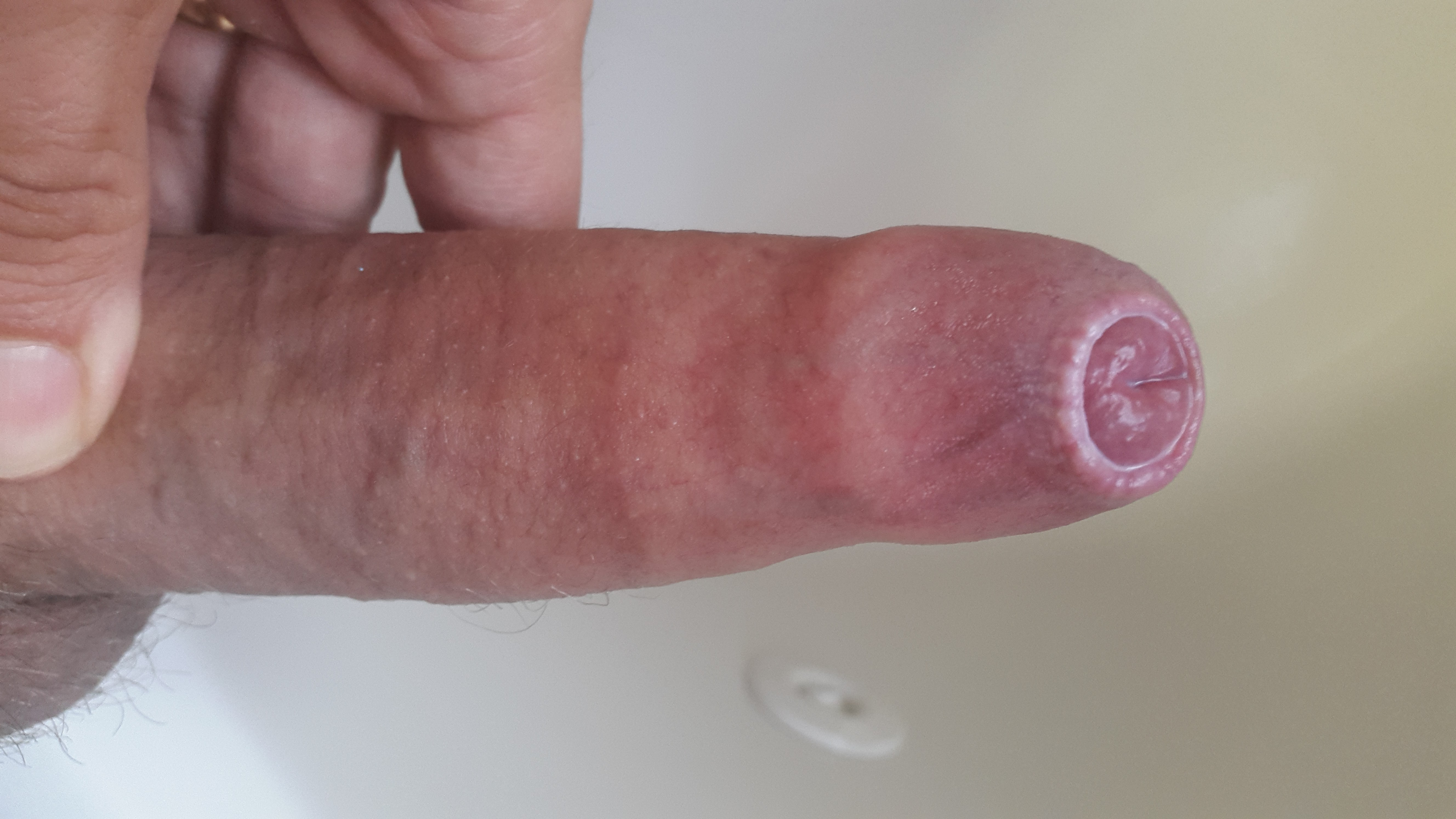 Penis with phimosis