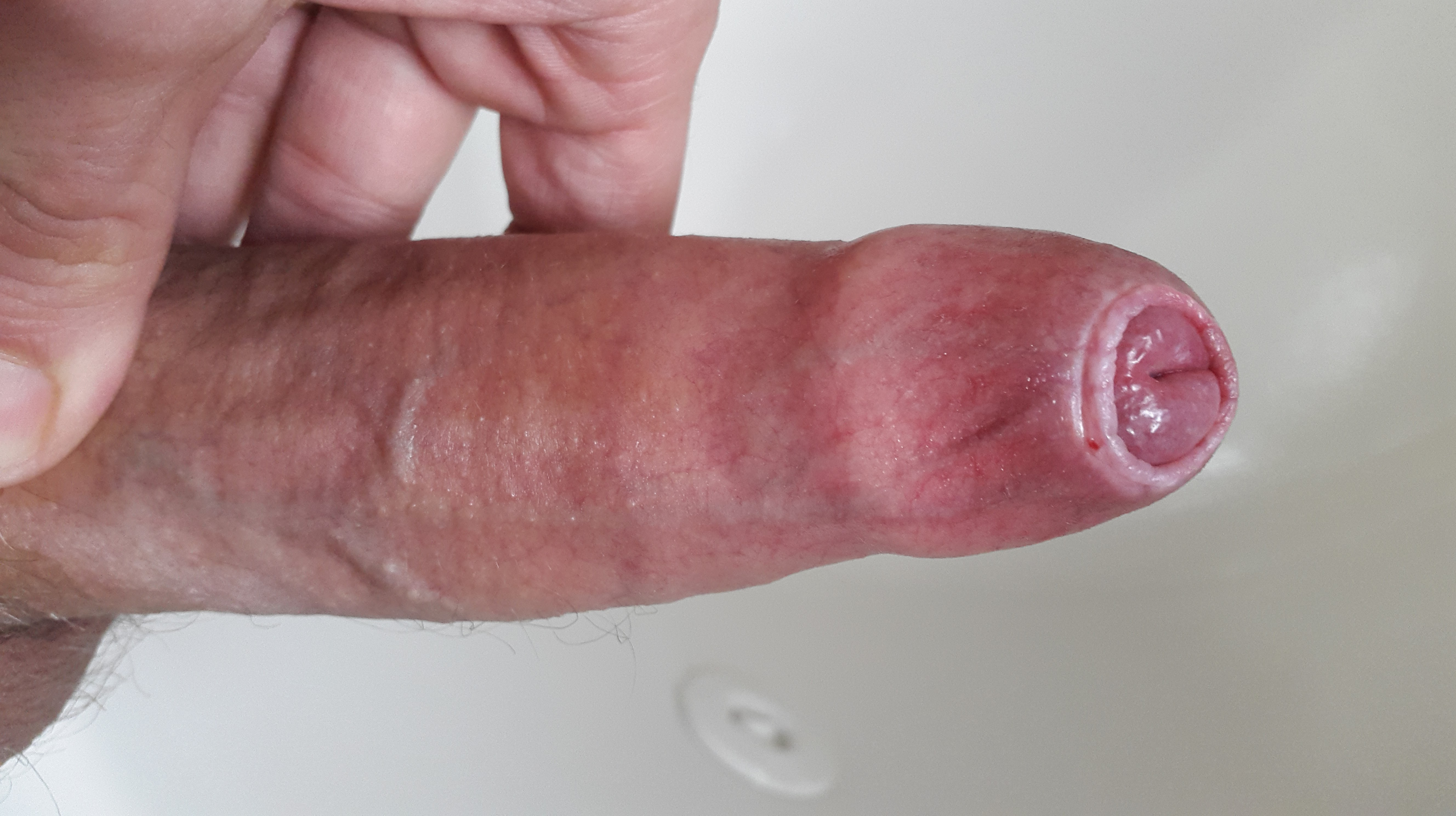 Penis with phimosis, phimotic ring visible